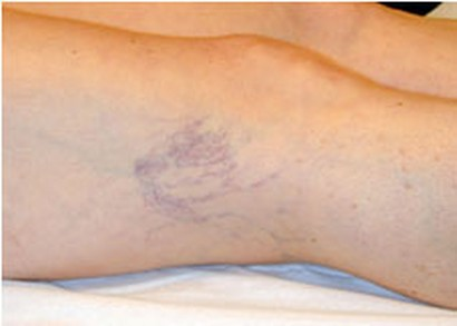 foto di gambe di trasferimento di grasso